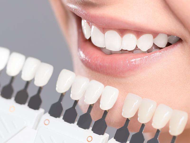 """ホワイトニング<br><span class=""""pink"""">歯を白くしたい</span>"""